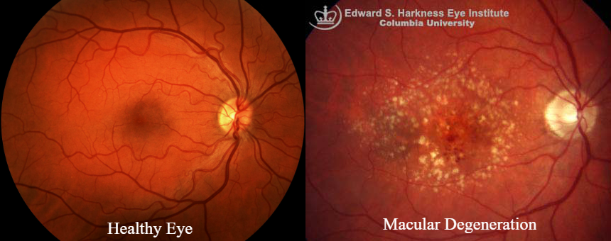 macula comparison
